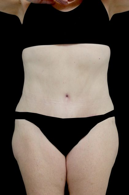 Tummy Tuck Before & After Patient #15098