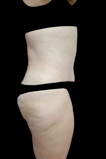 Lipoabdominoplasty Before & After Patient #15078
