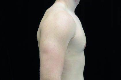 Gynecomastia Before & After Patient #14949