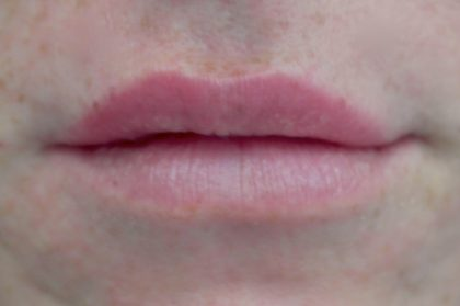 Lip Augmentation - Fillers Before & After Patient #14842