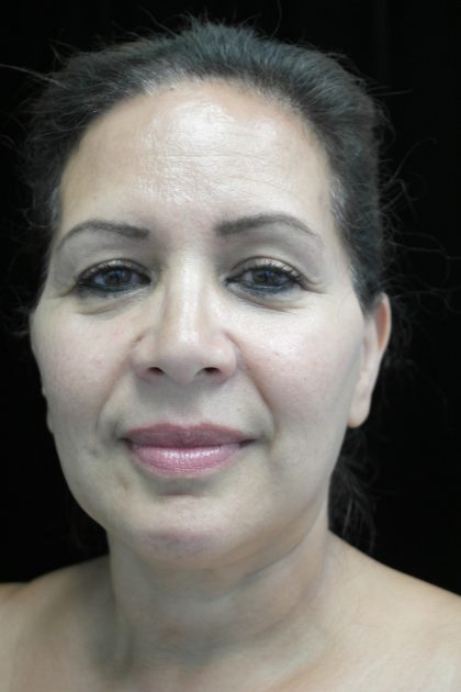 Chin Implants Before & After Patient #14806