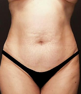 Tummy Tuck Before & After Patient #15174