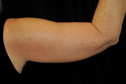 Brachioplasty Before & After Patient #13941