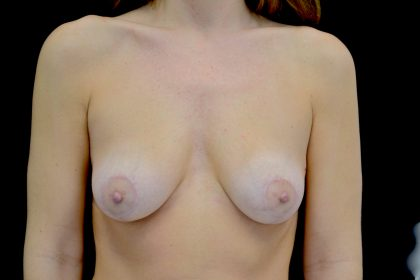 Breast Lift Before & After Patient #14423