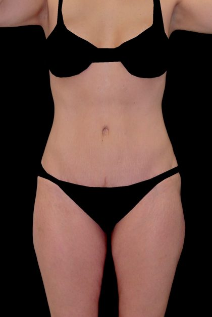 Tummy Tuck Before & After Patient #14938