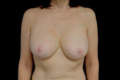 Breast Revision Before & After Patient #14677