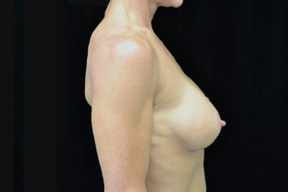 Breast Augmentation (Implants) Before & After Patient #14293