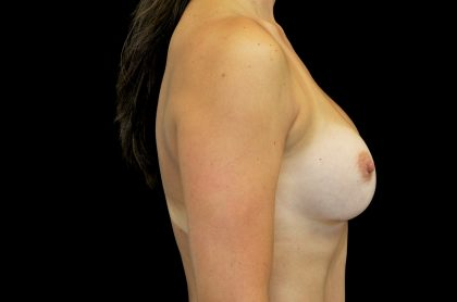 Breast Augmentation (Implants) Before & After Patient #14149