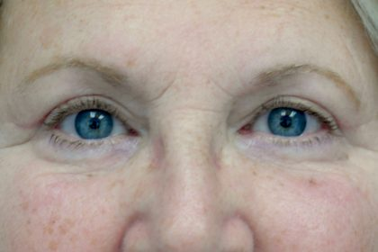 Blepharoplasty Before & After Patient #13899
