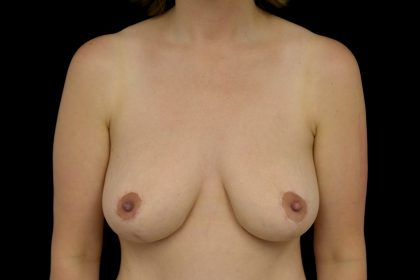 Breast Reduction Before & After Patient #14605