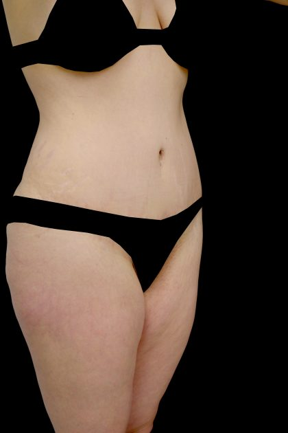 Lipoabdominoplasty Before & After Patient #15061