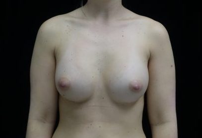 Breast Augmentation (Implants) Before & After Patient #14369