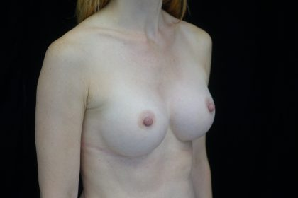 Breast Augmentation (Implants) Before & After Patient #14020
