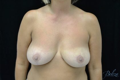 Breast Reduction Before & After Patient #14561