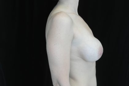 Breast Revision Before & After Patient #14712