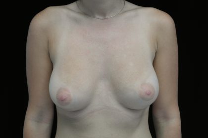 Breast Augmentation (Implants) Before & After Patient #14302