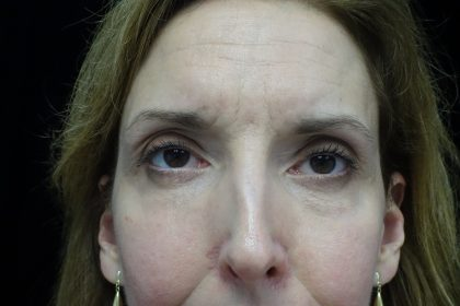 Blepharoplasty Before & After Patient #13908