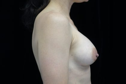 Breast Augmentation (Implants) Before & After Patient #14383