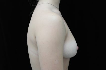Breast Reduction Before & After Patient #14554