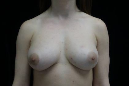 Breast Augmentation (Fat Transfer) Before & After Patient #13988