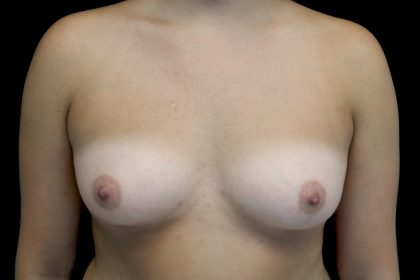 Breast Augmentation (Implants) Before & After Patient #14090