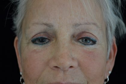 Permanent Cosmetics Before & After Patient #14752