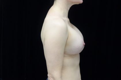 Breast Revision Before & After Patient #14665