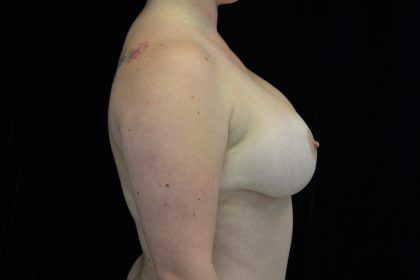 Breast Lift with Implants Before & After Patient #14492