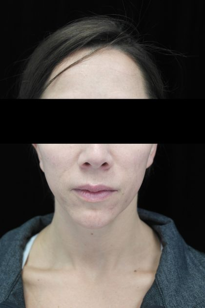 Chin Implants Before & After Patient #14816