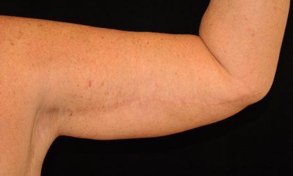 Brachioplasty Before & After Patient #13946