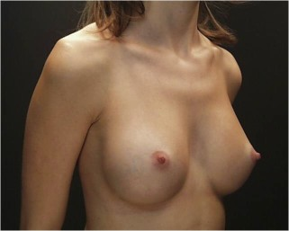 Breast Augmentation (Implants) Before & After Patient #14183