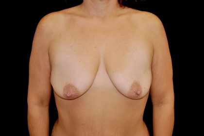 Breast Augmentation (Implants) Before & After Patient #14120