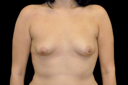 Breast Augmentation (Implants) Before & After Patient #14128