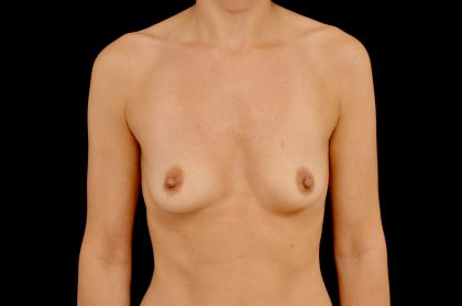 Breast Augmentation (Implants) Before & After Patient #14076
