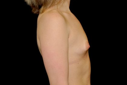Breast Augmentation (Implants) Before & After Patient #14285