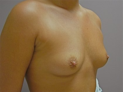 Breast Augmentation (Implants) Before & After Patient #14188