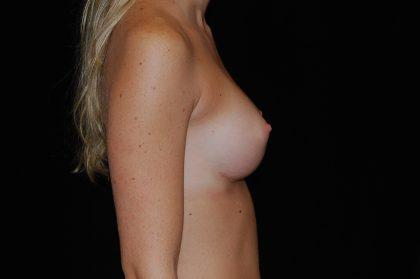 Breast Augmentation (Implants) Before & After Patient #14061
