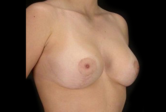 Breast Lift Before & After Patient #14477