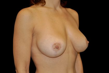 Breast Lift with Implants Before & After Patient #14514