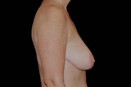 Breast Lift Before & After Patient #14447
