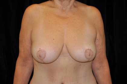 Breast Reduction Before & After Patient #14615