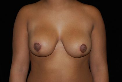 Breast Reduction Before & After Patient #14570