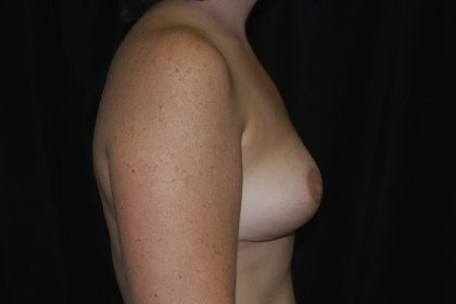Breast Reduction Before & After Patient #14641