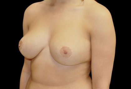 Breast Reduction Before & After Patient #14578