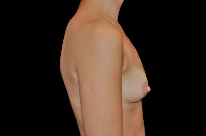 Breast Augmentation (Implants) Before & After Patient #14142