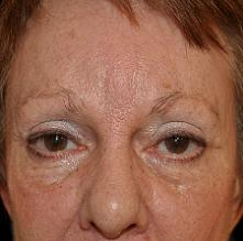 Browlift Before & After Patient #14749