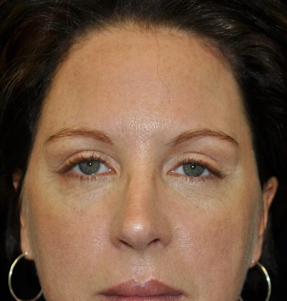 Browlift Before & After Patient #14738