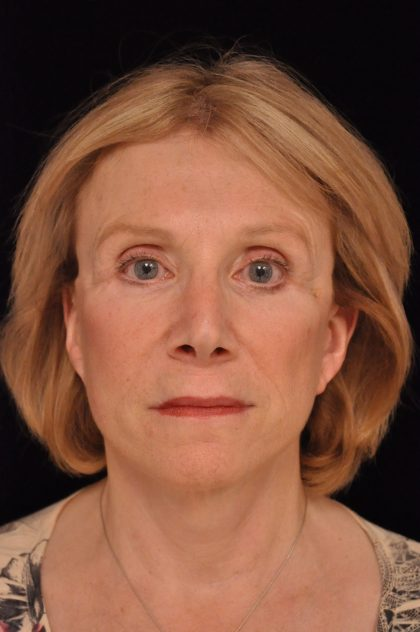 Facelift Before & After Patient #14860