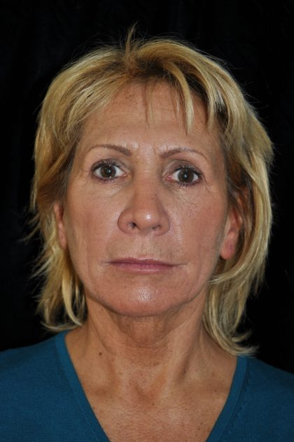 Facelift Before & After Patient #14923