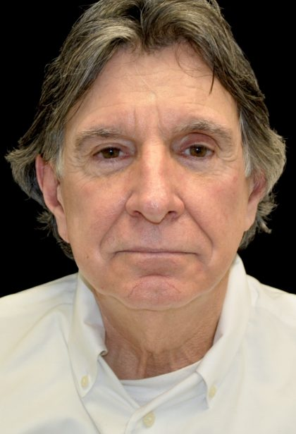 Facelift Before & After Patient #14848